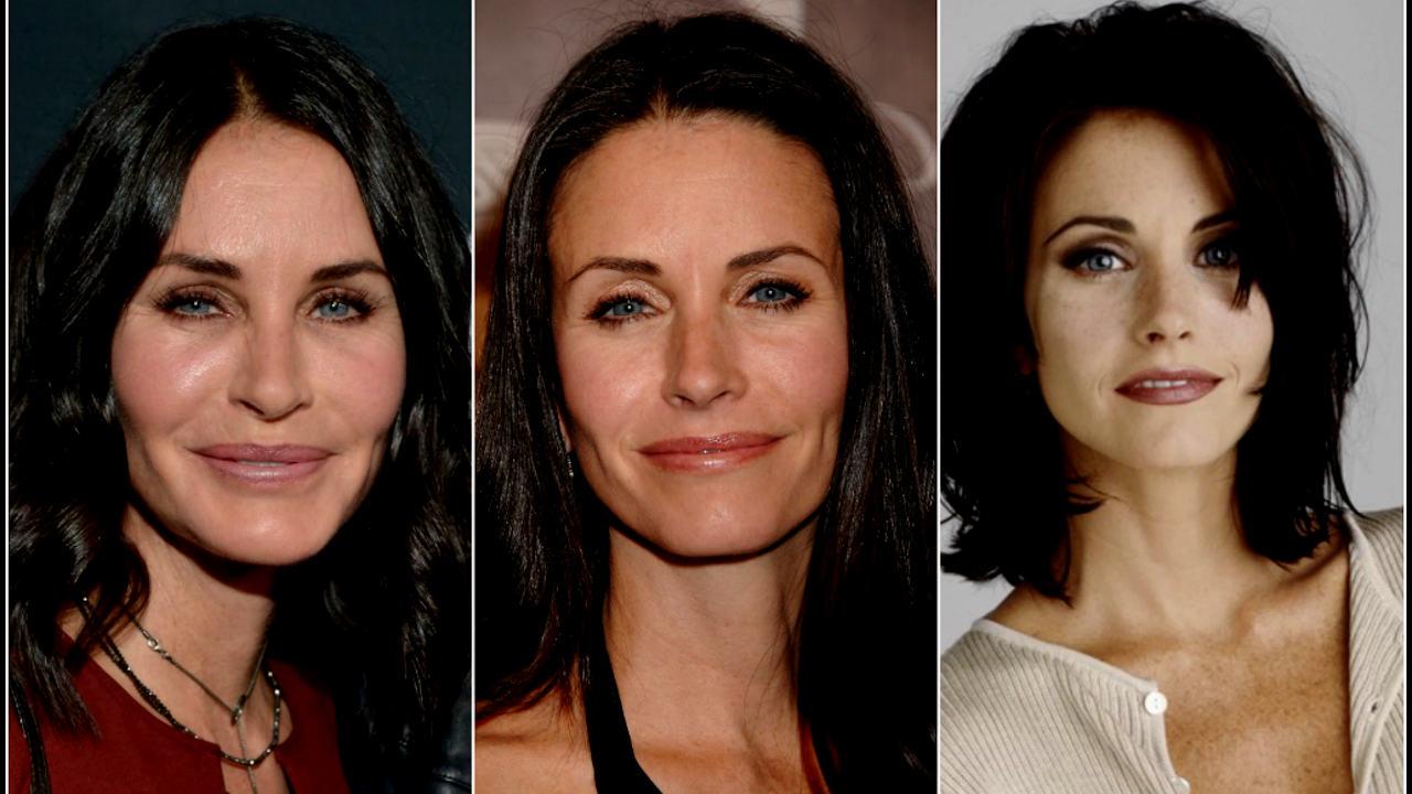 Famosas antes y después de cirugías plásticas